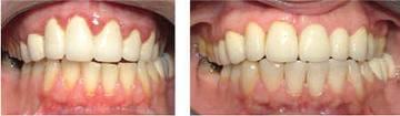 periodontal-tedavi